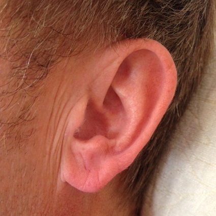 earlobe plumping before