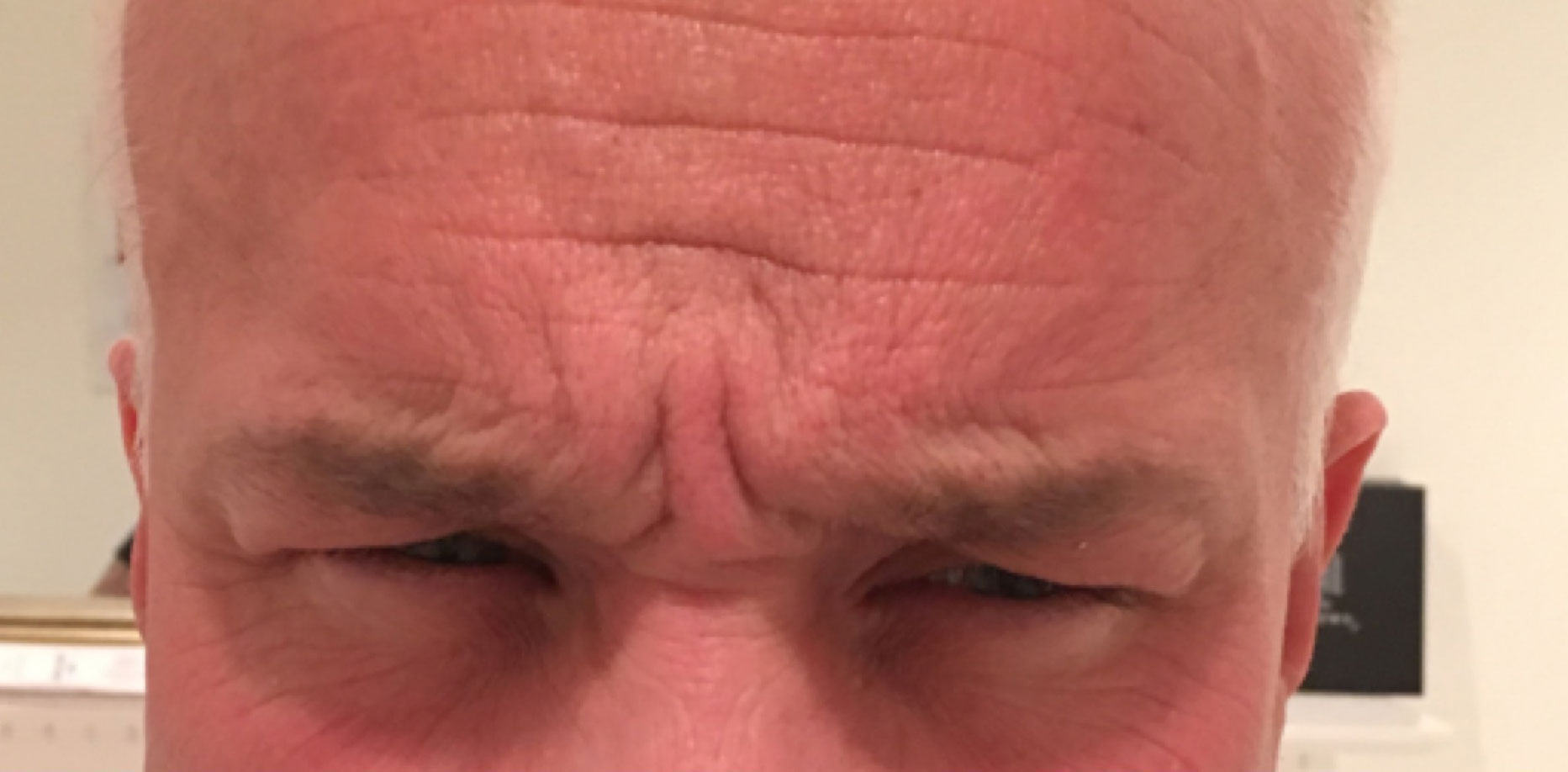 forehead botox before
