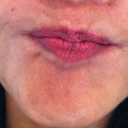 chin enhancement after