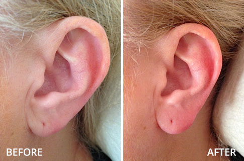ears-before-and-after-03