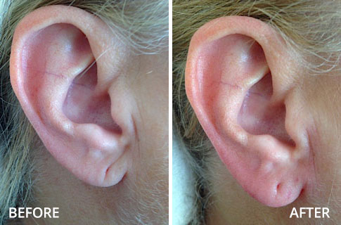 ears-before-and-after-04