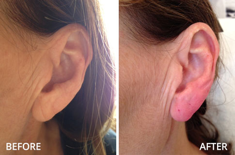 ears-before-and-after-06