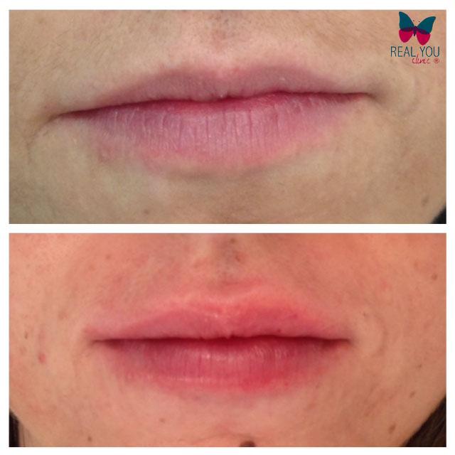 stylage-lip-filler2015