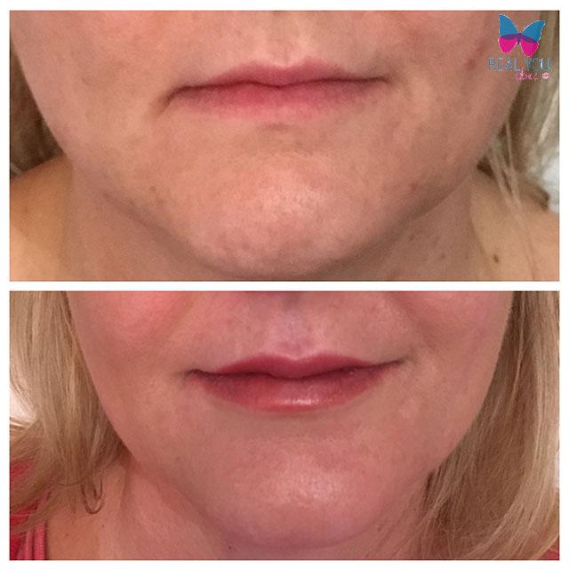 Lip-enhancement-with-Algeness