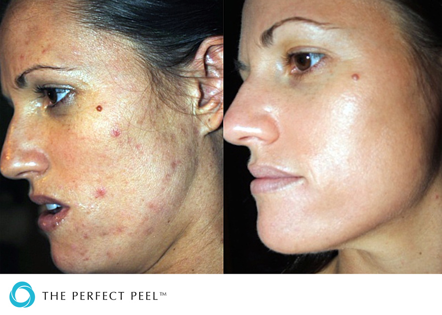 Facial peels for acne scars, aries sagittarius sex