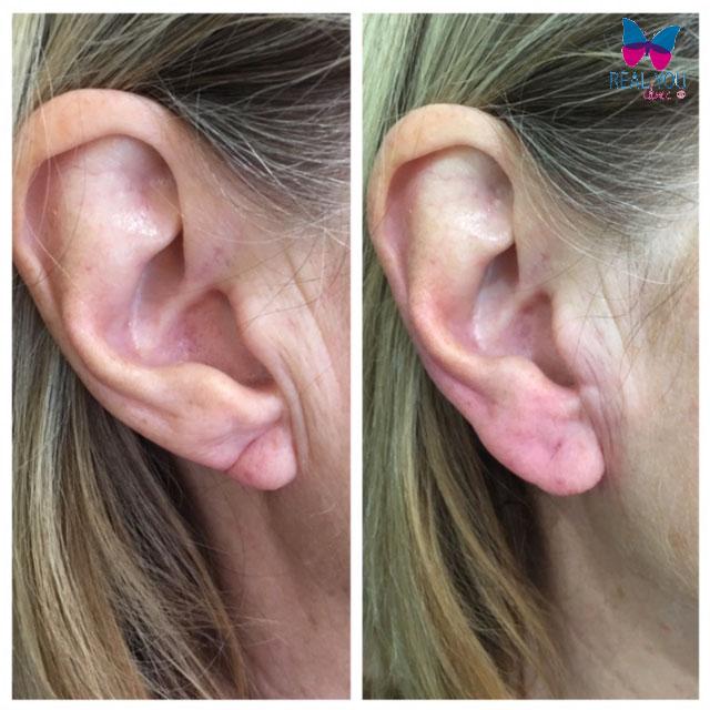 algeness-earlobe
