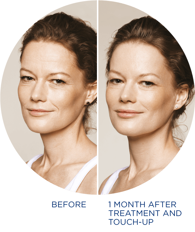 ANJELICA_BEFORE_AND_AFTER