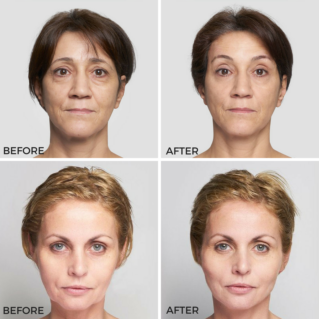 Thread Lift With Silhouette Soft® | Real You Clinic - Twickenham
