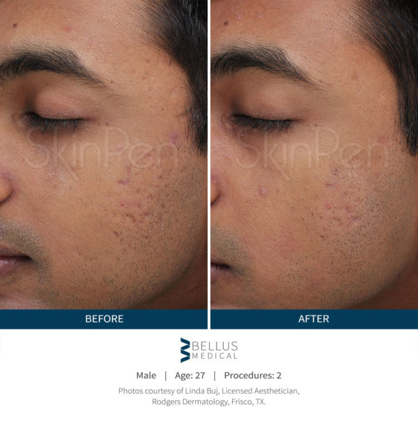 skinpen-male-before-after-1-600x607